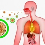 flu and mesothelioma
